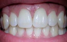 biological dentistry_five steps