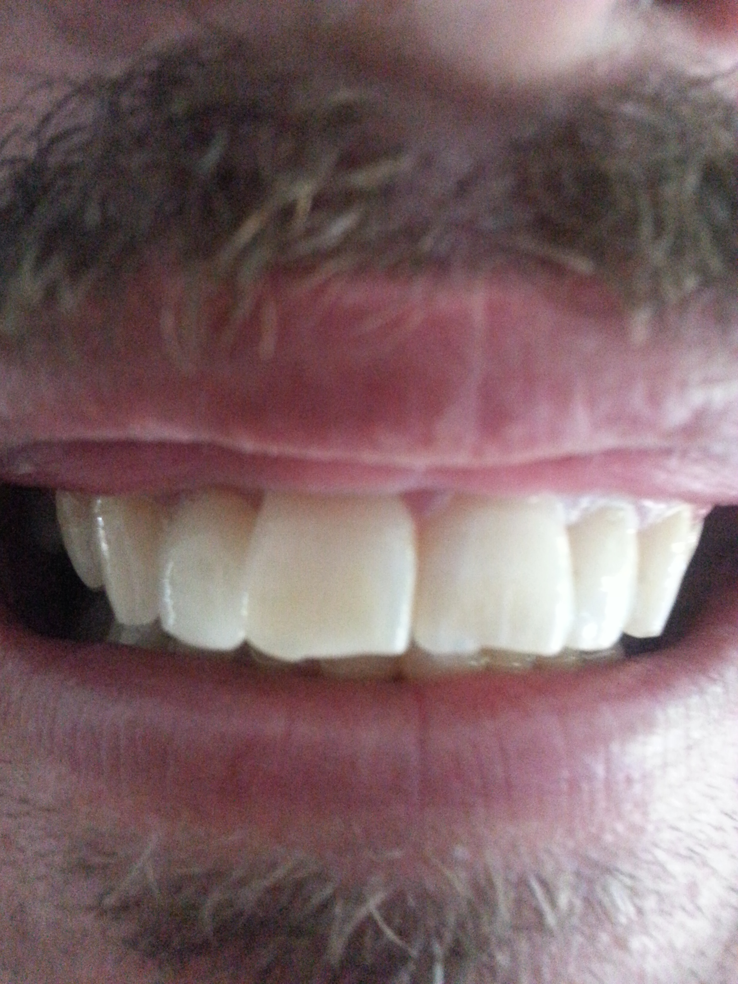 After New Porcelain crown and Tooth whitening in Single appointment