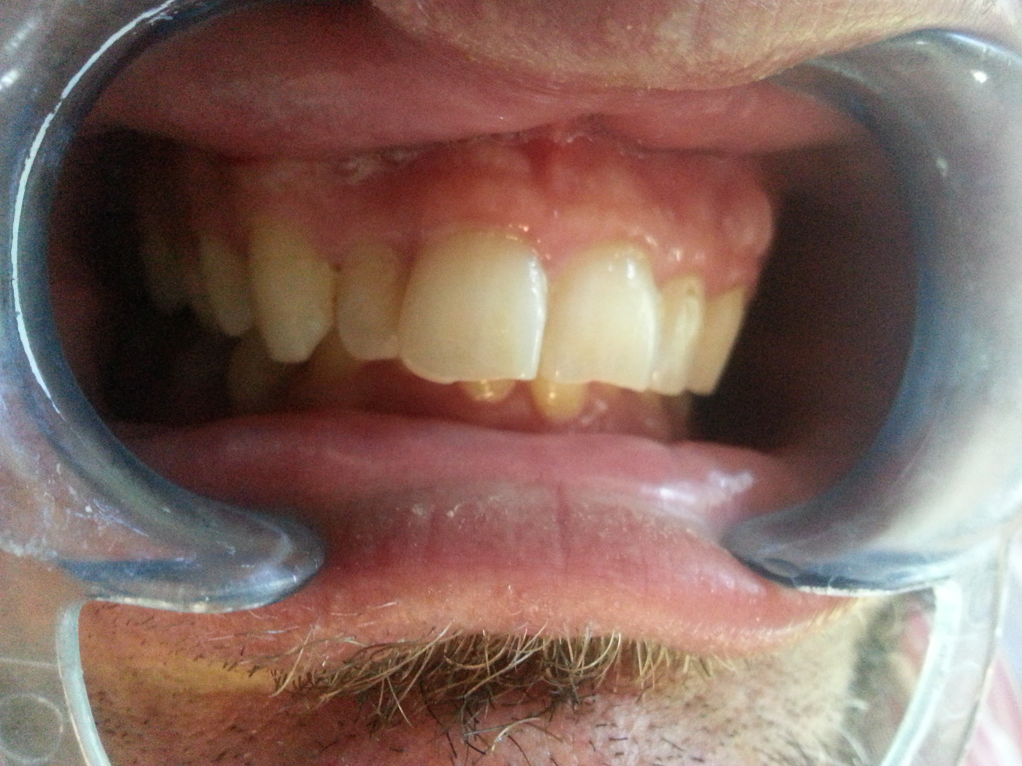 Before Misaligned upper lateral tooth
