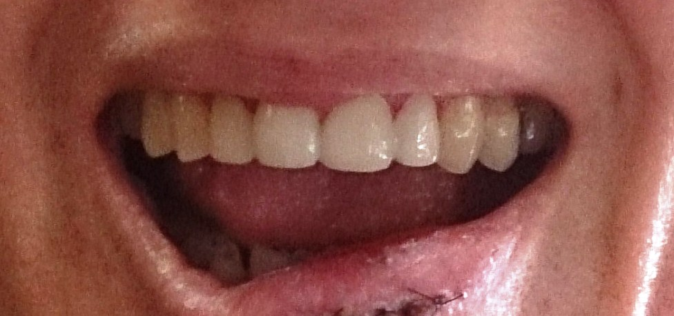 After 4 new veneers in a single appointment
