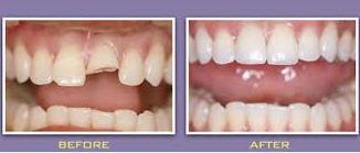 New_Dental_Crowns