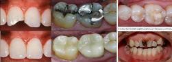 Restoring_Cavities3