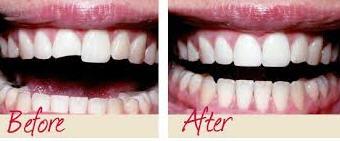 Restoring_Cavities4